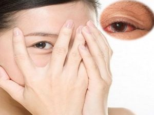 Mơ thấy đau mắt đánh con gì? Nằm mơ thấy mắt có ý nghĩa gì?